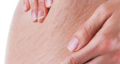 Cách trị rạn da trước và sau sinh